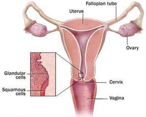 Kanker-Vagina